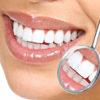 Имплантация для восстановления зубного ряда
